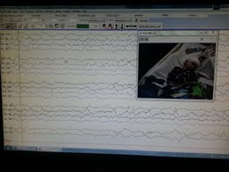 This is what the data looks like and what the video camera captures, see smaller square in Rt. corner that is Hudson on the bed.