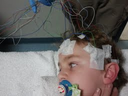 All the EEG leads.